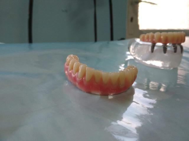 Implantes e prótese sobre implante - Foto 3