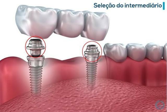 Implantes e prótese sobre implante - Foto 2