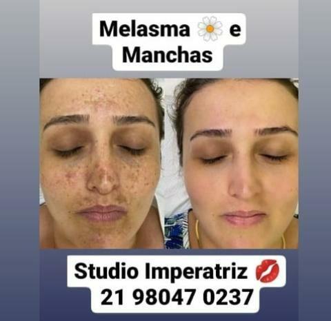 Studio Imperatriz - Foto 3