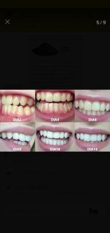Clareador Dental 100% Natural - Foto 2