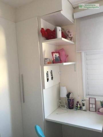 Apartamento com 3 dormitórios à venda, 60 m² por r$ 330.000 - parque bandeirante - santo a - Foto 7
