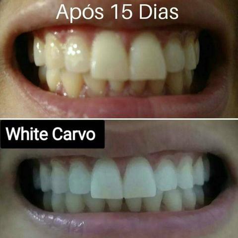 White carvo clareador dental - Foto 3