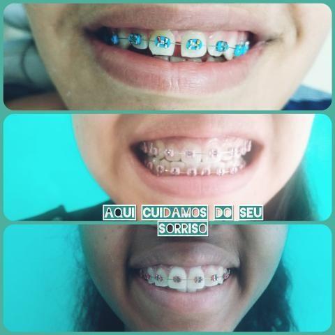 Dentista da Cidade de Deus. - Foto 5