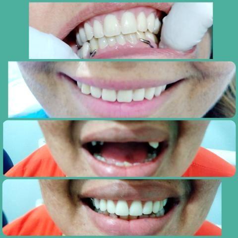 Dentista da Cidade de Deus. - Foto 4