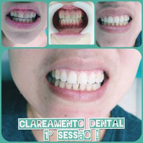 Dentista da Cidade de Deus. - Foto 6