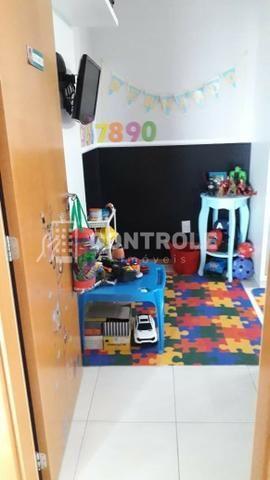 (W) Apartamento 02 dormitórios semi-mobiliado, em Jardim cidade, São José. - Foto 17