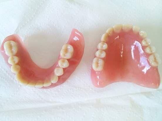 Prótese Dentária - Foto 3