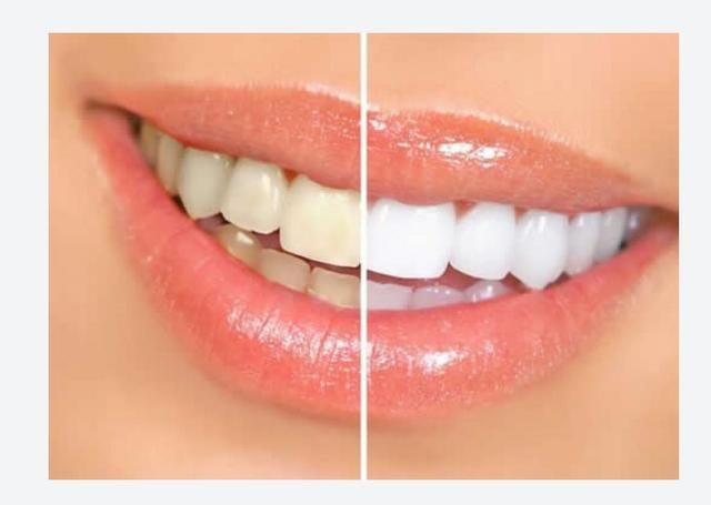Clareamento dos Dentes ( atendimento a domicilio)