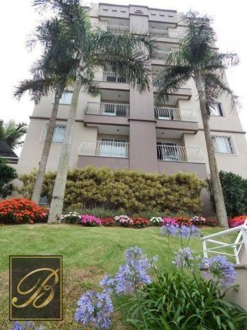 Apartamento com 2 dormitórios à venda, 58 m² por R$ 230.000 - Boa Vista - Joinville/SC - Foto 5