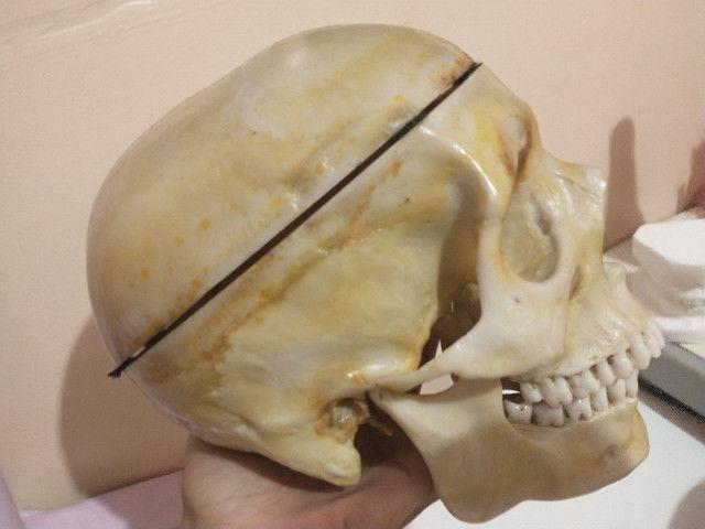 Vendo crânio anatômico - Foto 2