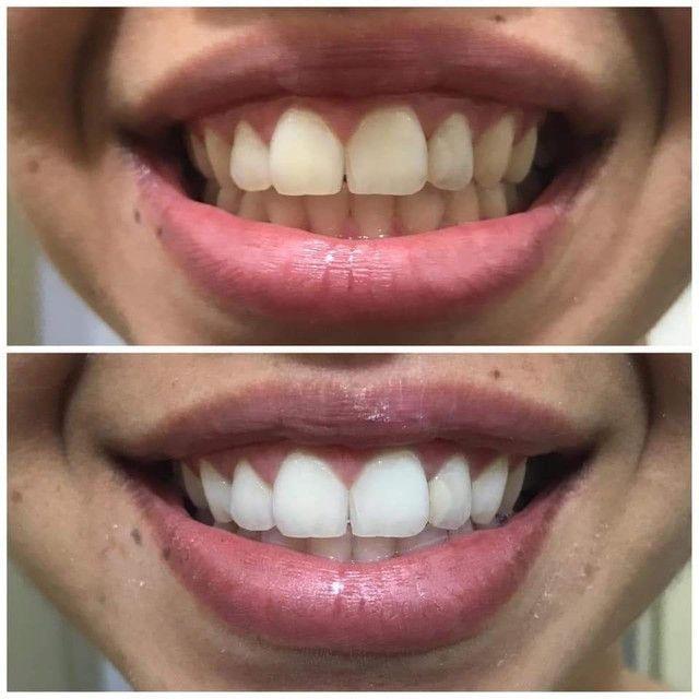 Creme Dental Black Action - Foto 2