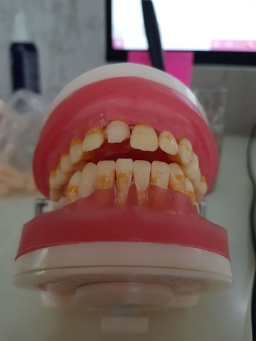 Manequim odontológico de periodontia  - Foto 3