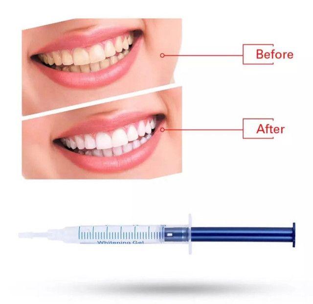 Kit gel clareador dental imediata entrega  - Foto 2