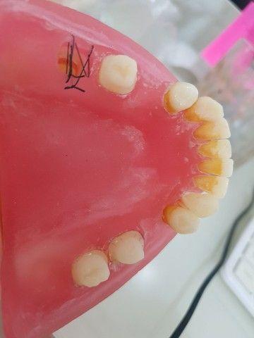 Manequim odontológico de periodontia  - Foto 2