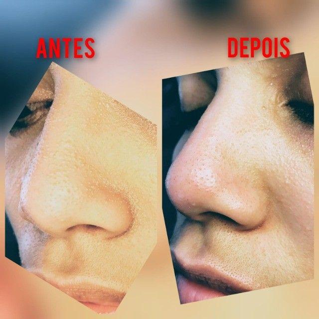 Espaço Muniz, Cortes de Cabelo, Limpeza de Pele e tratamento da Sombrancelha - Foto 5