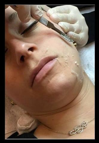 Dermaplaning Facial!! Pele de Seda! - Foto 3