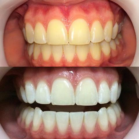 Clareamento Com Dentista Por 300 00 Servicos Imbituba Santa
