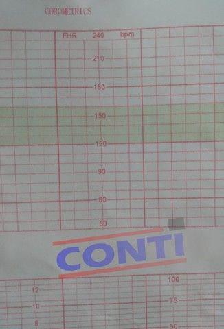 Papel para Cardiotocógrafo - Corometrics 152 * 90 * 150 fls. - Foto 3