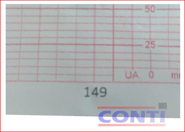 Papel para Cardiotocógrafo - Corometrics 152 * 90 * 150 fls. - Foto 2