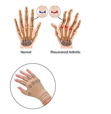 Luvas Tendinite Artrite Melhor Tratamento Articulações - Foto 3