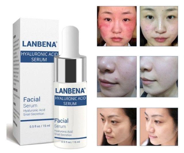 Kit Vitamina C Serum + Ácido Hialurônico Anti Rugas Face - Foto 4