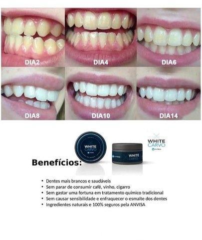 Dentes mais brancos em 3 dias - Foto 3