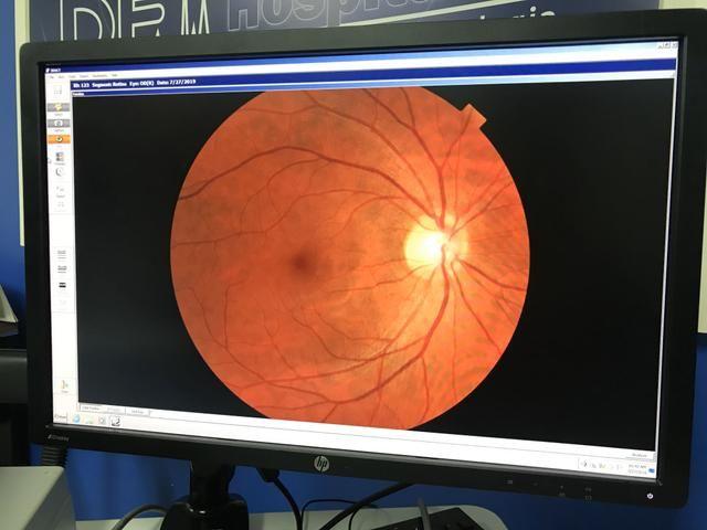 OCT - Topcon 3D OCT 2000 - Foto 6