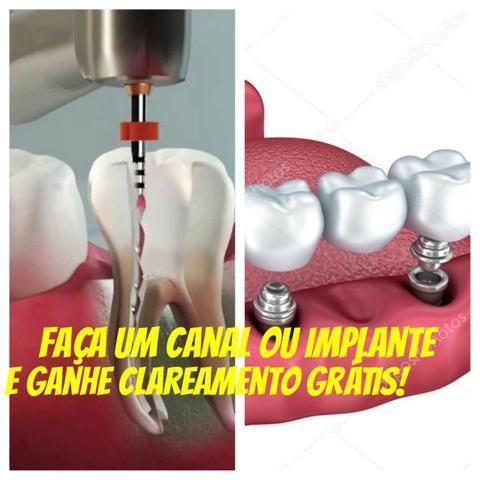 Mega Promocao Clareamento Dental Gratis Servicos Imbituba