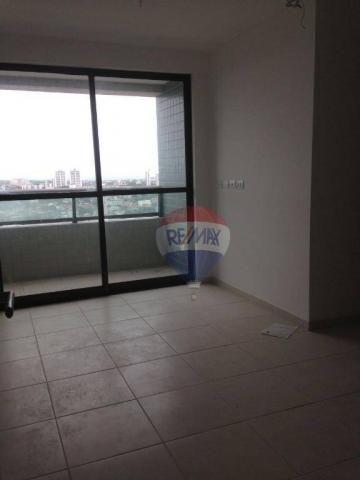 Apartamento 3 qts - Arruda - Andar Alto - Foto 10