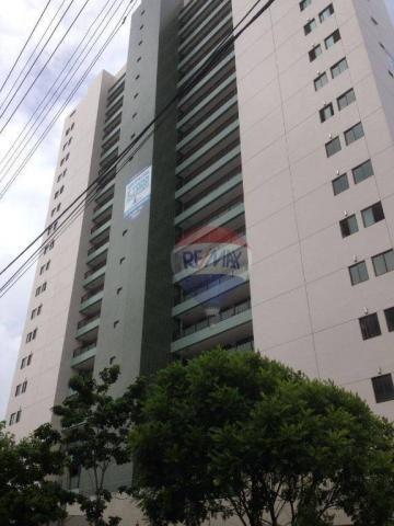 Apartamento 3 qts - Arruda - Andar Alto