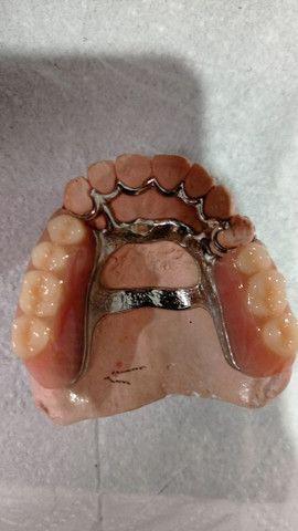 Prótese Dentária - Foto 6