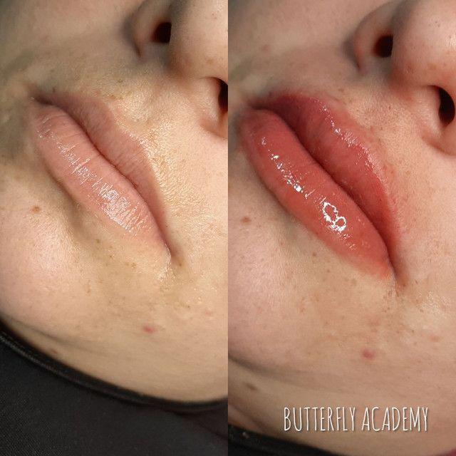 Curso de Micropigmentação Labial  - Foto 2