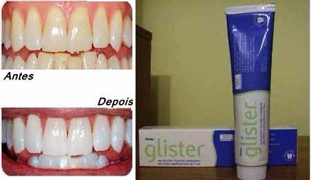 Creme Dental Importado Clareador