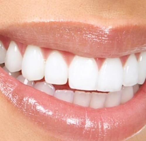 White Max Clareamento De Dente Beleza E Saude Siqueira