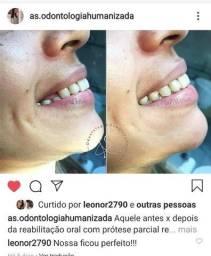 Prótese dentária - clareamento - implante - restauração - limpeza - aparelho - extração