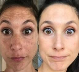 Tratamento para Melasma e Acne