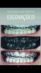 Gel dental carvão ativado( clareador dental)sabor hortelã