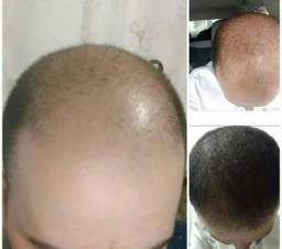 Título do anúncio: Produto para crescer cabelo, barba e sobrancelhas 120ml com 10%... o melhor do BRasil