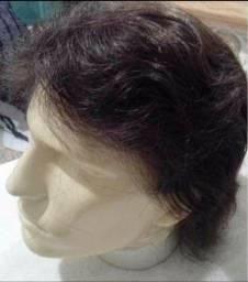 Título do anúncio: Prótese capilar e perucas