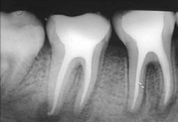 Endodontista/ Procuro Parcerias
