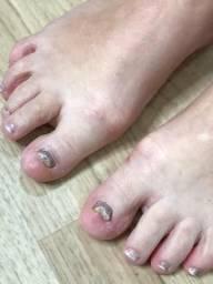 Alongamento de unhas pés e mão