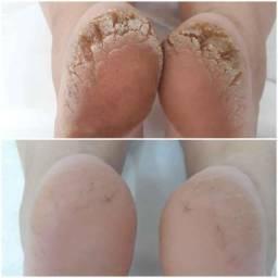 Título do anúncio: plástica  dos  pés