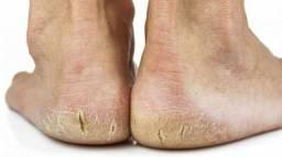 Título do anúncio: Acabe com as rachaduras dos pés