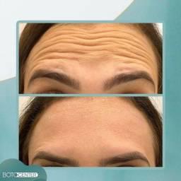 Título do anúncio: Dia de Botox em Araguatins 12x Sem juros