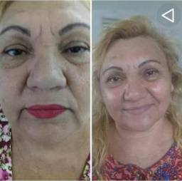Tratamentos facial