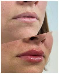 Preenchimento labial com ácido hialurônico