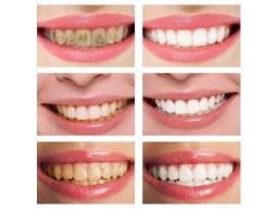Branqueador de Limpeza Mousse Removedor de Manchas, Placas Dentarias e Odor 60g
