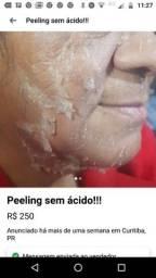 Tratamentos-limpezas profunda  de pele