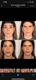 Título do anúncio: Botox Day