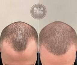 Micropigmentação capilar, bb glow, Remoção manchas e verrugas, limpeza e estrias.